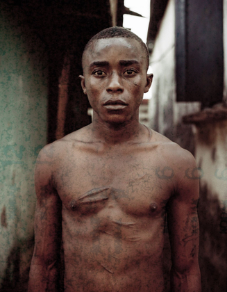 Abdul, a 17 years old orphan, survived four years in the maximum security prison in Freetown - Sierra Léon. In prison he was just a number - A lonely child hustling for his life. His memories of the past are dark and cloudy, and his body is laced with scars. He says that their is no justice, and that he feels sad and lonely. But, he also knows that he is some how lucky