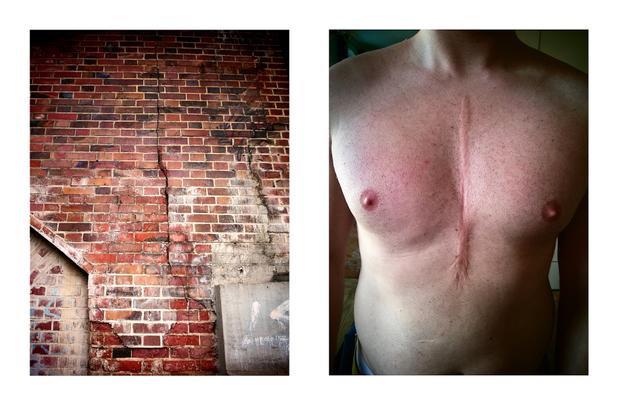berlin scar 1