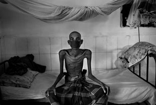 "From the series ""Tuberculosis in Bangladesh"""