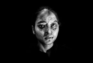 Acid Attack - Dally Kumari - 14 years