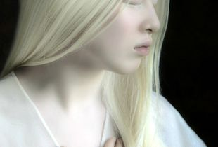 Albino girl from China