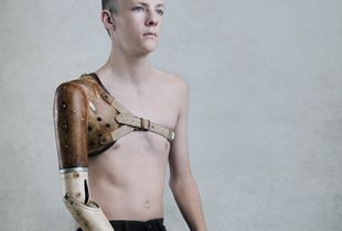 Cameron and the Prosthetic Arm