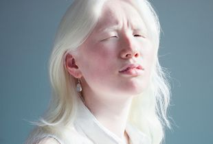 A Different Look: Looking Closely at Albinism. Finalist, LensCulture Portrait Awards 2015.