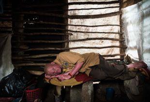 African albino in his self-made hut in the Usambara mountains of Tanzania