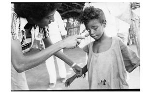 Blind from Xerophthalmia (vitamin A deficiency) after the 1985 famine in Sudan