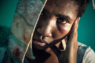 Banil came to the Antenatal Clinic of Port Moresby after having been sexually assaulted by her ex-boyfriend. The day after their separation, her former partner came to her parents' house and, threatening her with a knife, dragged Banil to a bush area. There he beat her and raped her. Banil's father managed to find his daughter lying unconscious on the ground and brought her to the hospital.