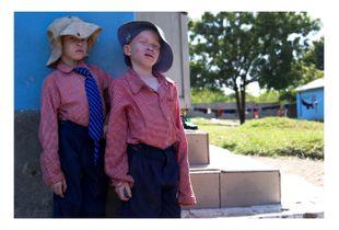 Albinos Boys