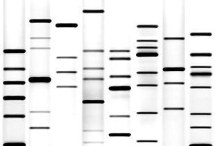 Auto-portrait #6 (DNA bands)
