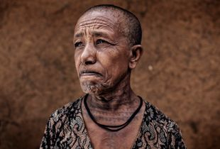 Agew Mider- Amhara Region, Ethiopia 2017. A mother with a traditional tattoo.