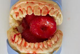 teeth and strawberries