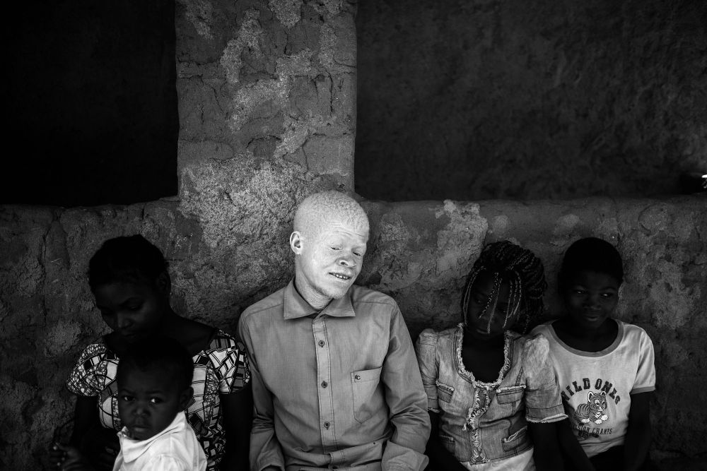 Nampula, Mozambique—October 5, 2016. Ricardo C., Nampula, 23 years old, is a primary school teacher and father. He says that albinos are being hunted like animals and feels bad about being discriminated against for being an albino. He is proud to be an albino but lives in fear because of the current situation. In addition, Elidia C., Ricardo's sister, was a victim of kidnapping and murder. She was raped, kidnapped and killed by three kidnappers. Ricardo and Mauricio, her brothers, think that Elidia's husband planned the attack. At the time of the abduction, he was not at home. Afterwards, his family bought a new car. © Daniel Rodrigues, Finalist, LensCulture Portrait Awards 2017.