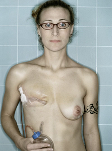 Self-Portrait, Post-Mastectomy I, 12.2005
