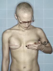 Self-Portrait, Tamoxifen Recovery II, 05.2006