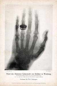 An image of Prof. A. von Kölliker's hand, made by W.C. Röntgen, January 23, 1896 © W.C. Röntgen and courtesy of Deutsches Rontgen-Museum, Remscheid