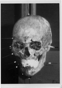 Face-Skull Superimposition of Josef Mengele, Medico-Legal Institute labs, São Paulo, 1985 © Maja Helmer