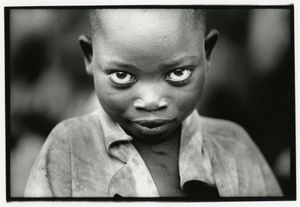 Girl with guinea worm