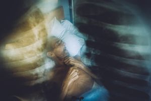 Diagnosis TB © Maxim Dondyuk