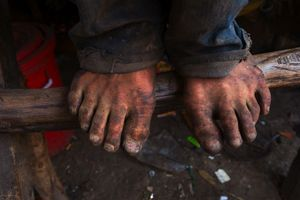 Wearing no proper footwear, this recycling worker's feet get blackened in the rubbish dump everyday, risking cuts and infection. © Nigel Dickinson.