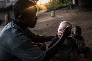 Mwanje washes his children Sekiringa and Marry in the morning, and applies sun screen with SPF protection 50+ to Sekiringa