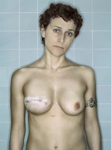 Self-Portrait, Post-Reconstruction II, 12.2006