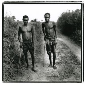 Guinea worm victims