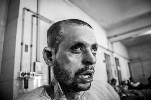 Mohammad Ripon, a petrol bomb victim who lost his one eye almost and got burnt almost every part of his body due to opposition parties road blockade. And he is the only earning person of his family.© Anik Rahman