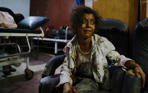 A wounded Syrian girl cries at a makeshift hospital in the rebel-held area of Douma, Syria, 12 August 2015.