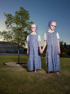 * Albino Identical Twins/Acadia Hutterite Colony, Manitoba/July 2011
