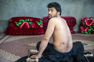 Lal Khan took 2,000 liters of diesel to the Pakistan border. On his way back, he was shot and taken to the hospital after bleeding severely for 30 minutes on the road. His spinal cord was damaged. Lal Khan does not know who shot him. He is now paralyzed in both legs.