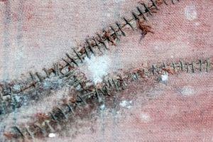 Stitching wounds.