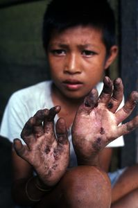 © 2014, Stephen Shames — Philippines. Boy who picks sugar cane shows his hands after a days work