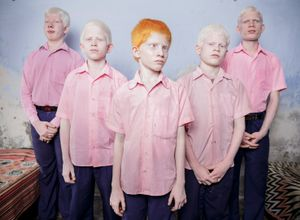 1st Prize People – Staged Portraits Single. A group of blind albino boys photographed in their boarding room at the Vivekananda mission school for the blind in West Bengal, India. This is one of the very few schools for the blind in India today © Brent Stirton, South Africa, Reportage by Getty Images