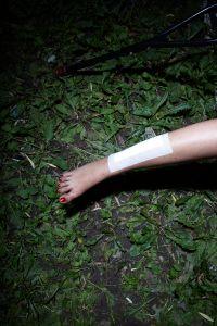 Girls Leg with Abscess