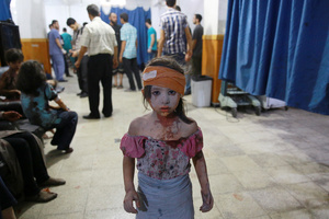 A wounded Syrian girl at a makeshift hospital in Douma, Syria, 22 August 2015.