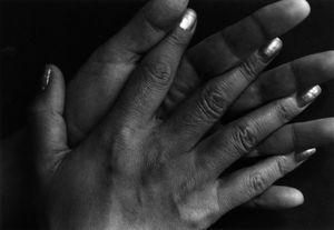 1・9・4・7#61, 1988-1989 © Miyako Ishiuchi, The Third Gallery Aya