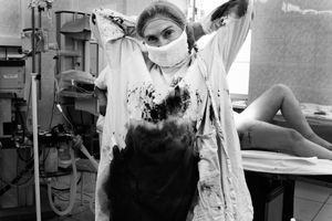 After the Cesarean Section with a great blood loss, Penza Oblast, Russia, 2013
