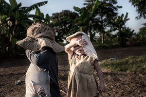 Albinism affects their vision and when the sun is bright it's hard for the children to see properly