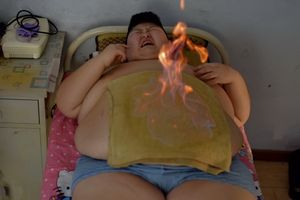 """""""November 25th,2016, Changchun city, Jilin province, China. Fire treatment is another weight loss treatment. Ingredients are applied to the body's meridian system, with the fire process unblocking meridian points that hinder the speed of the body's metabolic processes, all with the aim of transforming fat into energy that can be eliminated from the body."""