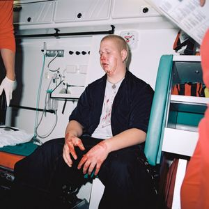 A broken nose, 23.40  from the series BATTERED (2006-2007). © Harri Pälviranta