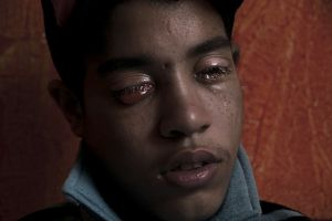 "Nineteen-year-old Reda (Arabic word meaning 'contentment') was shot in his eyes on November 19, 2011. He was on Mohamed Mahmoud Street in central Cairo to support protesters in an ongoing battle against security forces near the Interior Ministry, often seen as a symbol of the former regime's draconian practices. ""I don't remember feeling anything. I ran and knelt down to pick up a dead body."""