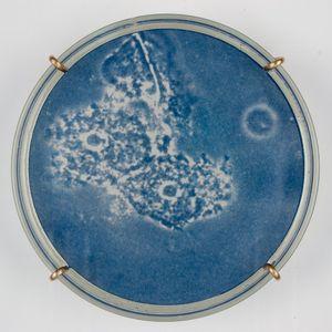 Bacterial vaginosis (detail)