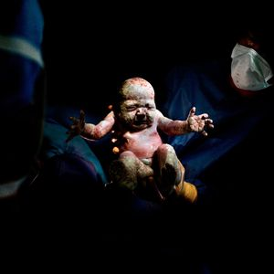 Caesar #19. Children born by incision/Caesarean section. All babies photographed for this series surved. © Christian Berthelot, France, Shortlist, Portraiture, Professional Competition. Courtesy of 2015 Sony World Photography Awards.