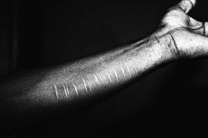 Self Harmed with blade marks of Toffajol's hand. © Gazi Nafis Ahmed