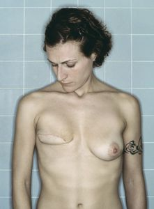 Self-Portrait, Post-Mastectomy III, 12.2005