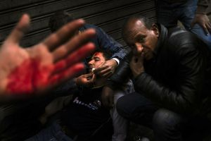 An anti-Mubarak demonstrator receives treatment in a makeshift clinic set-up on a street corner behind Tahrir (Liberation) Square in Cairo on Wednesday February 2, 2011.