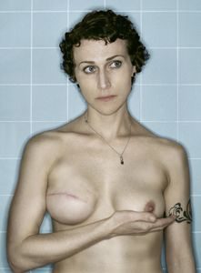Self-Portrait, Post-Reconstruction V, 02.2007