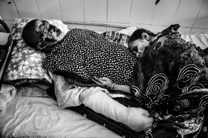 Riad is another petrol bomb victim who is piece of diamond for his mother. After admitting Riad in DMC Burn Unit his mother didn't take any rest for taking care his son. And suddenly in one afternoon her mom laid over his leg and slept.© Anik Rahman