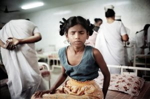 Trichy, India 2003. A child crying after a cornea transplant.