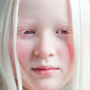 A DIFFERENT LOOK - a closer look on albinism. (ANDERS KIJKEN)