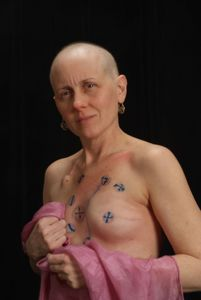 Patti; Cancer 8